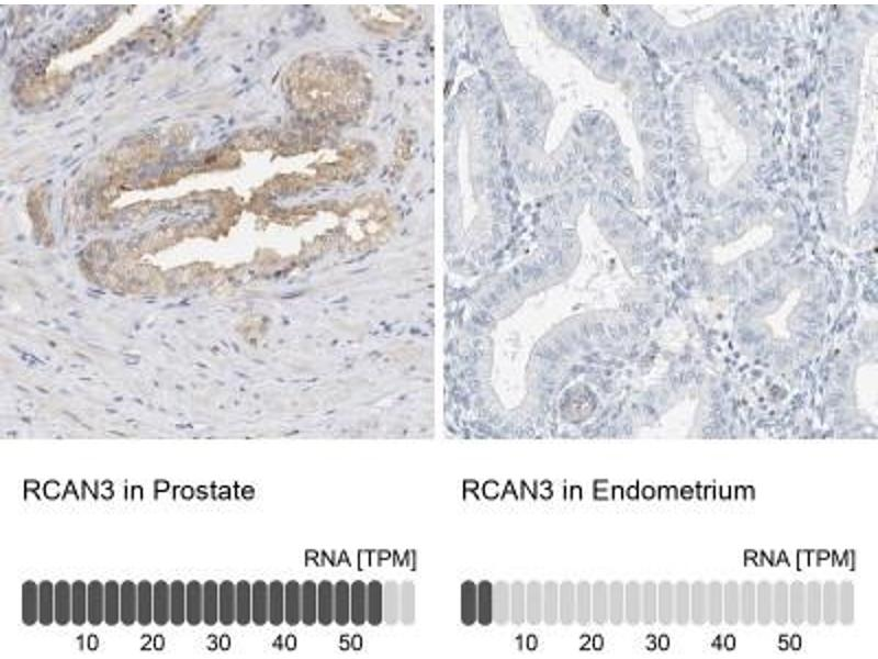 Immunohistochemistry (Paraffin-embedded Sections) (IHC (p)) image for anti-RCAN Family Member 3 (RCAN3) antibody (ABIN4349731)