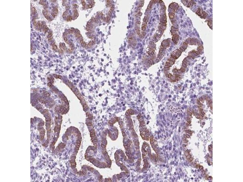 Immunofluorescence (Paraffin-embedded Sections) (IF (p)) image for anti-Serotonin Receptor 2B (HTR2B) antibody (ABIN4276881)