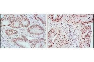 Immunohistochemistry (IHC) image for anti-MLH1 antibody (MutL Homolog 1, Colon Cancer, Nonpolyposis Type 2 (E. Coli)) (ABIN1108253)