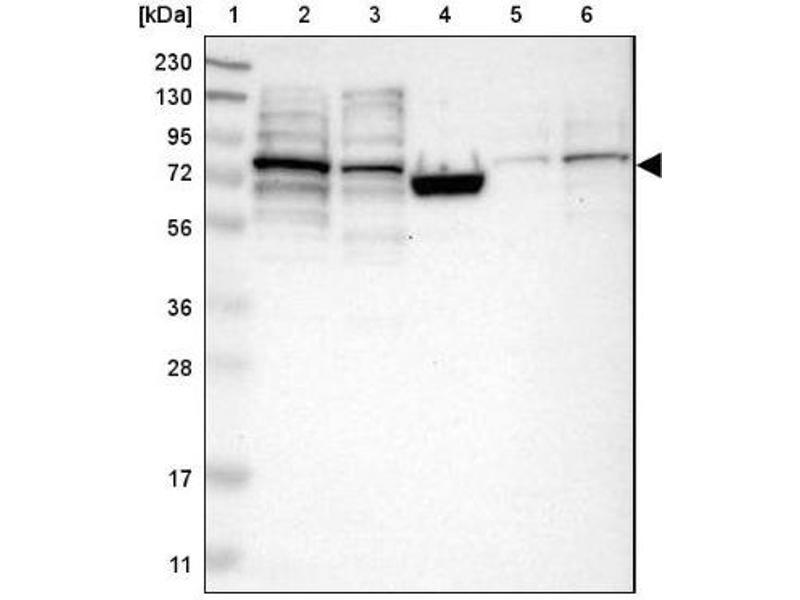 Western Blotting (WB) image for anti-RAS Protein Activator Like 2 (RASAL2) antibody (ABIN4349403)