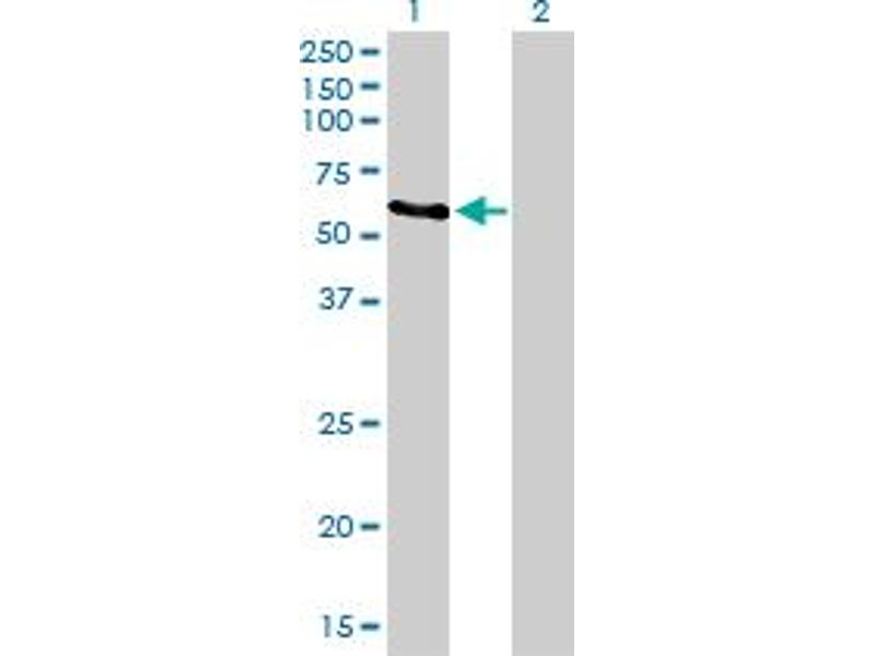 Immunohistochemistry (IHC) image for anti-RAD23 Homolog A (S. Cerevisiae) (RAD23A) (AA 151-250) antibody (ABIN393680)