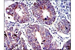 Immunohistochemistry (IHC) image for anti-Apoptosis-Inducing Factor, Mitochondrion-Associated, 1 (AIFM1) antibody (ABIN4278820)