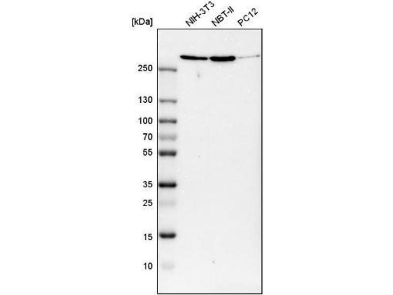 Western Blotting (WB) image for anti-Filamin A, alpha (FLNA) antibody (ABIN4311944)