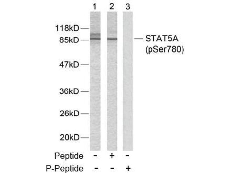 image for anti-STAT5A antibody (Signal Transducer and Activator of Transcription 5A) (pSer780) (ABIN196698)