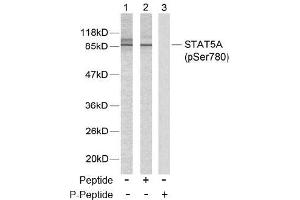 image for anti-STAT5A antibody (Signal Transducer and Activator of Transcription 5A) (pSer780) (ABIN196699)