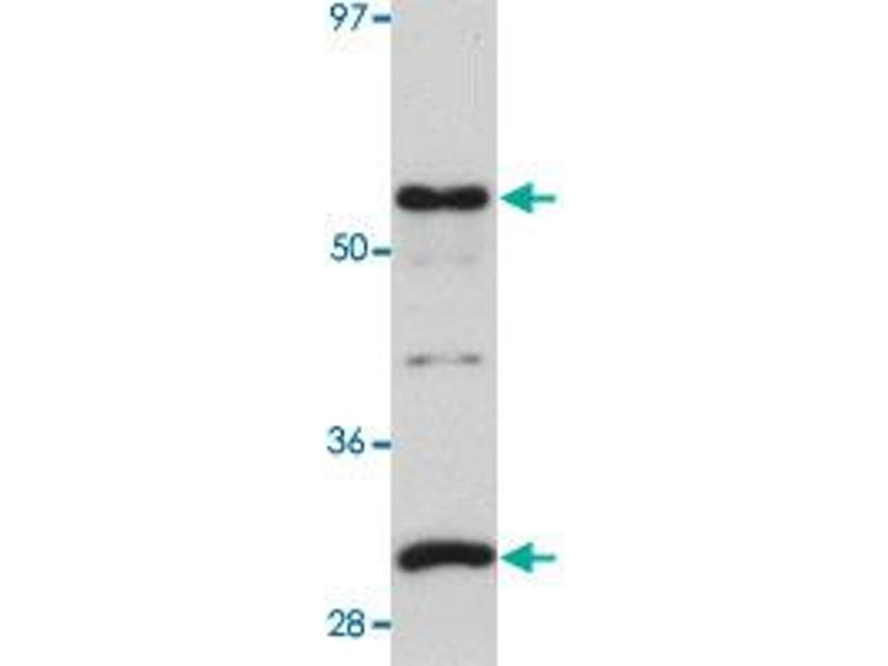 Image no. 2 for anti-Protein Kinase Domain Containing, Cytoplasmic Homolog (Mouse) (PKDCC) antibody (ABIN5587824)