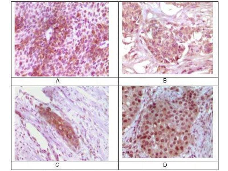 Immunohistochemistry (IHC) image for anti-RAB25, Member RAS Oncogene Family (RAB25) antibody (ABIN969489)