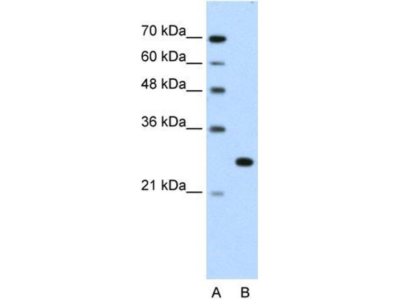 Western Blotting (WB) image for anti-Forkhead Box R2 (FOXR2) (N-Term) antibody (ABIN310396)
