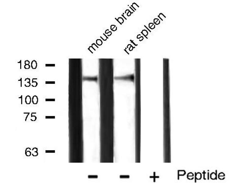 Western Blotting (WB) image for anti-Fms-Related tyrosine Kinase 1 (Vascular Endothelial Growth Factor/vascular Permeability Factor Receptor) (FLT1) antibody (ABIN6265971)