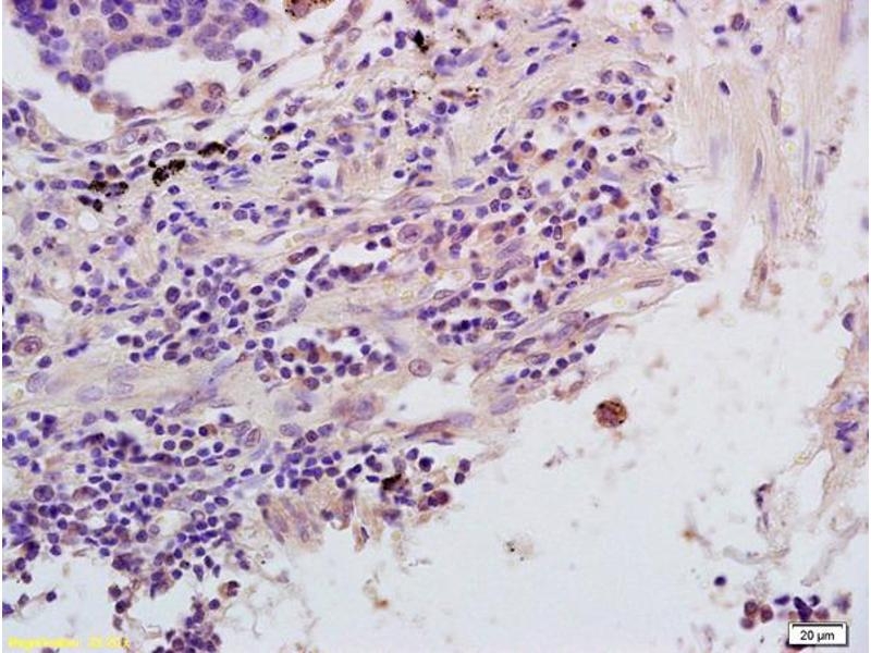 Immunohistochemistry (IHC) image for anti-Nuclear Factor of kappa Light Polypeptide Gene Enhancer in B-Cells Inhibitor, epsilon (NFKBIE) (AA 180-230) antibody (ABIN1386753)