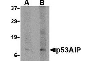 Image no. 1 for anti-P53-Regulated Apoptosis-Inducing Protein 1 (TP53AIP1) (N-Term) antibody (ABIN1031499)