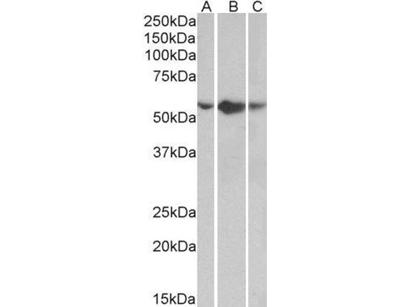 Western Blotting (WB) image for anti-Tumor Necrosis Factor Receptor Superfamily, Member 1A (TNFRSF1A) (Internal Region) antibody (ABIN2560469)