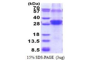 Image no. 1 for Ring Finger Protein 114 (RNF114) (AA 1-228) protein (His tag) (ABIN5853600)