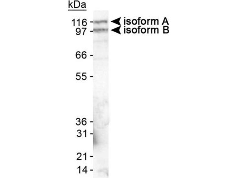 Western Blotting (WB) image for anti-Erythrocyte Membrane Protein Band 4.1 Like 3 (EPB41L3) (AA 400-500), (Internal Region) antibody (ABIN258876)