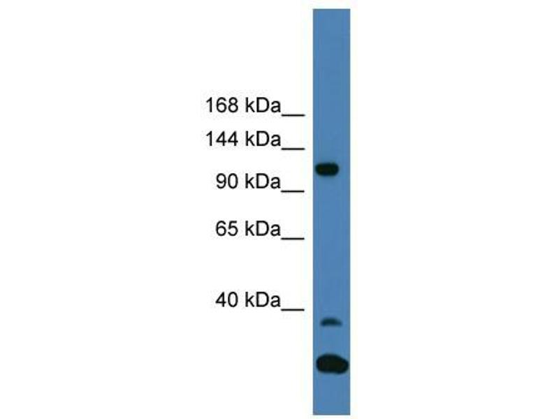 Western Blotting (WB) image for anti-Tyrosine Kinase 2 (TYK2) (C-Term) antibody (ABIN2779322)