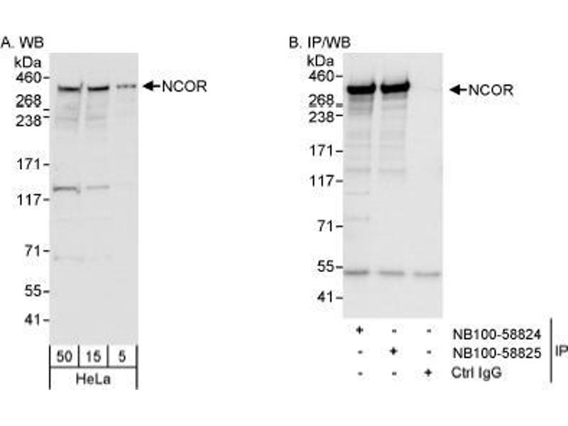 Western Blotting (WB) image for anti-Nuclear Receptor Co-Repressor 1 (NCOR1) (AA 1525-1575) antibody (ABIN188815)