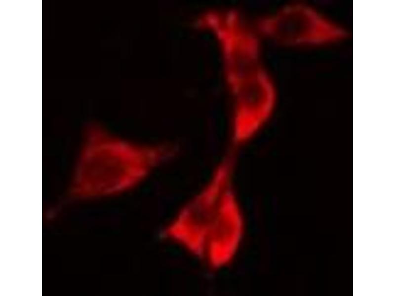 Immunofluorescence (fixed cells) (IF/ICC) image for anti-Receptor-Interacting Serine-threonine Kinase 2 (RIPK2) antibody (ABIN6264766)