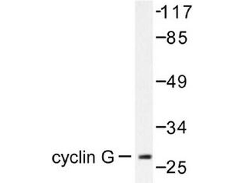 image for anti-Cyclin G1 (CCNG1) antibody (ABIN265382)