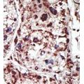 anti-PACSIN1 antibody (Protein Kinase C and Casein Kinase Substrate in Neurons 1) (Middle Region)