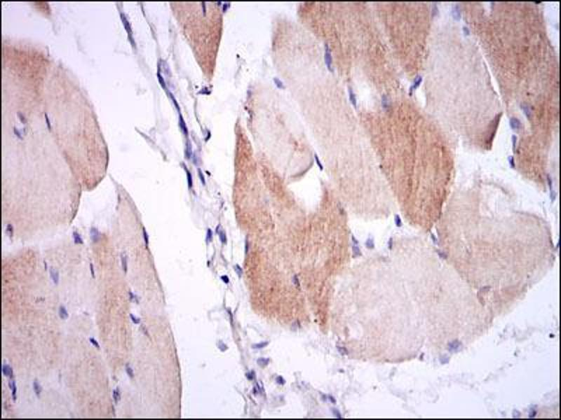 Immunohistochemistry (IHC) image for anti-IL1B antibody (Interleukin 1, beta) (ABIN969215)