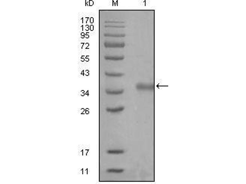 Western Blotting (WB) image for anti-Nuclear Receptor Co-Repressor 1 (NCOR1) (AA 1-192) antibody (ABIN2869350)