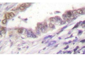 Immunohistochemistry (Paraffin-embedded Sections) (IHC (p)) image for anti-Cyclin A2 (CCNA2) antibody (ABIN4301457)