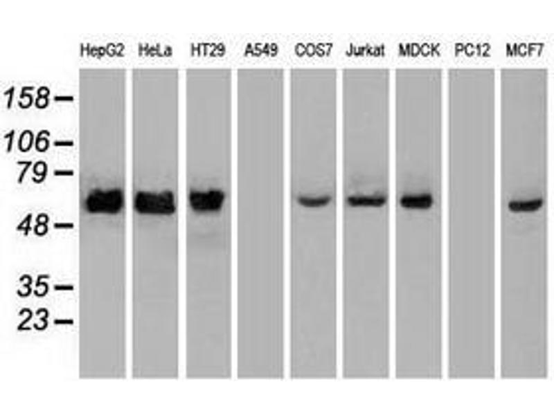 image for anti-Checkpoint Kinase 2 (CHEK2) antibody (ABIN1497495)