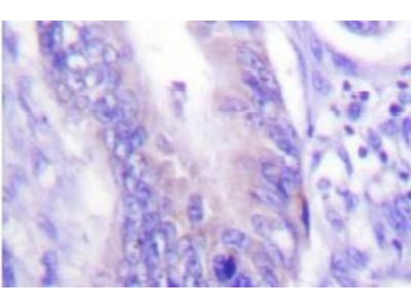 Immunohistochemistry (IHC) image for anti-WASF1 antibody (WAS Protein Family, Member 1) (ABIN408099)