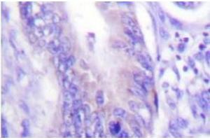 Immunohistochemistry (IHC) image for anti-WAS Protein Family, Member 1 (WASF1) antibody (ABIN408099)