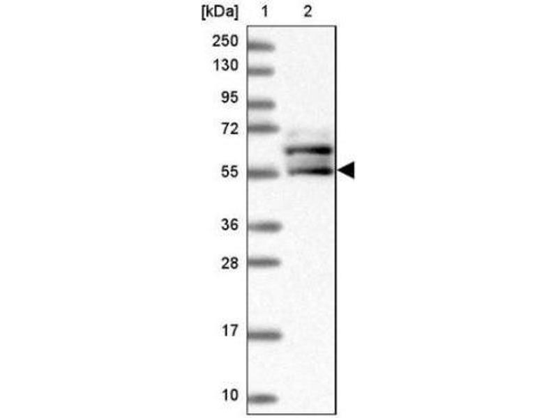 Western Blotting (WB) image for anti-BICC1 antibody (Bicaudal C Homolog 1 (Drosophila)) (ABIN4284604)