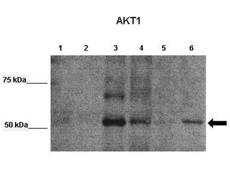 Western Blotting (WB) image for anti-V-Akt Murine Thymoma Viral Oncogene Homolog 1 (AKT1) (N-Term) antibody (ABIN2792186)