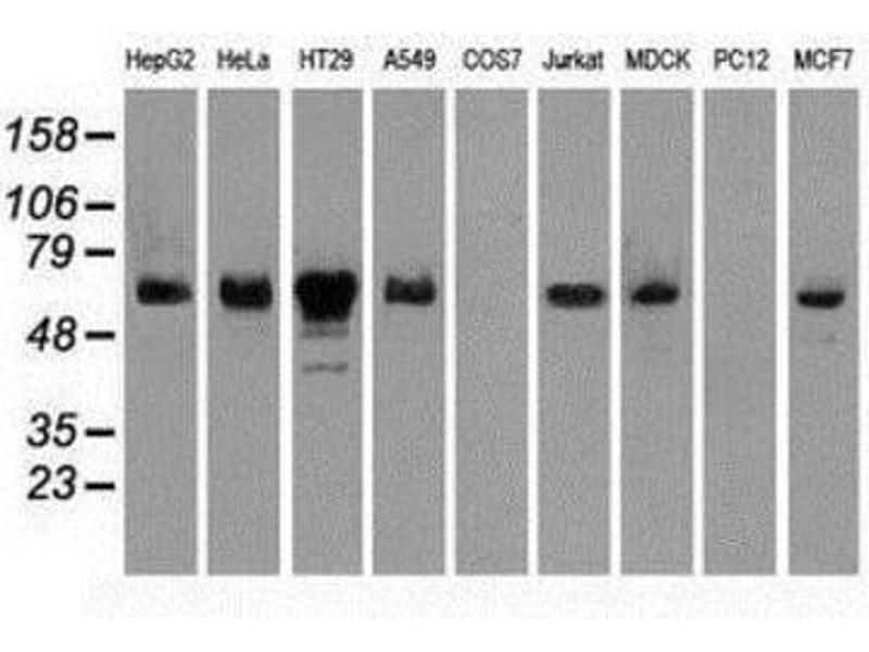 Western Blotting (WB) image for anti-Checkpoint Kinase 2 (CHEK2) (Transcript Variant 1) antibody (ABIN4297968)
