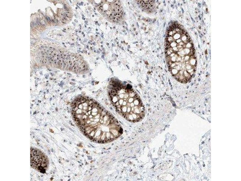 Immunohistochemistry (Paraffin-embedded Sections) (IHC (p)) image for anti-Bystin-Like (BYSL) antibody (ABIN4285613)
