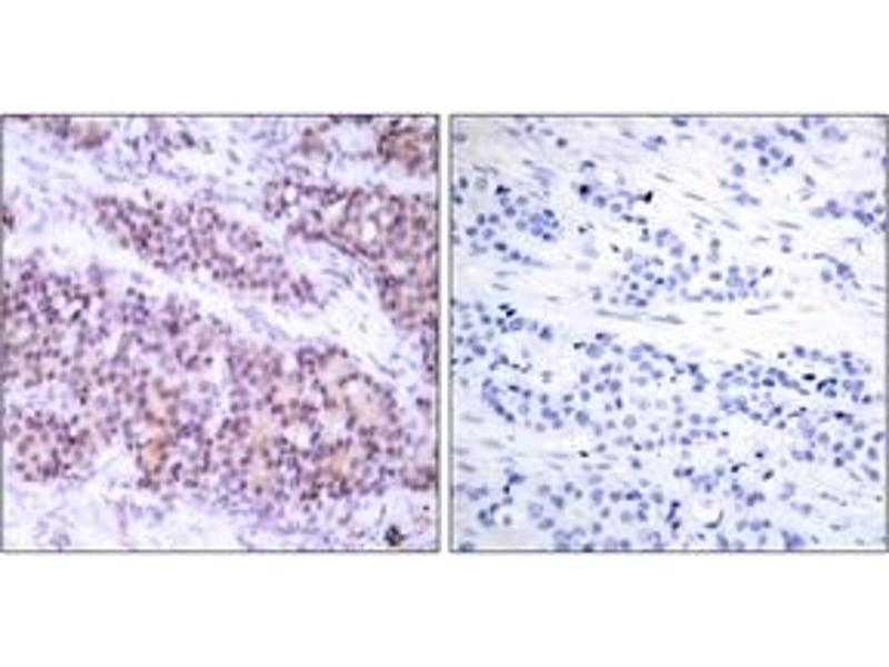 Immunohistochemistry (IHC) image for anti-BCL2L1 antibody (BCL2-Like 1) (pSer62) (ABIN1531788)