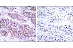 Immunohistochemistry (IHC) image for anti-BCL2-Like 1 (BCL2L1) (AA 28-77), (pSer62) antibody (ABIN1531788)