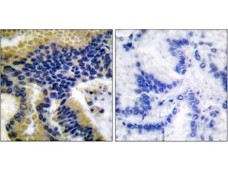 Immunohistochemistry (IHC) image for anti-Caspase 9 antibody (Caspase 9, Apoptosis-Related Cysteine Peptidase) (Cleaved-Asp330) (ABIN1536088)
