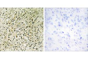 Image no. 1 for anti-Deleted in Liver Cancer 1 (DLC1) antibody (ABIN1576083)