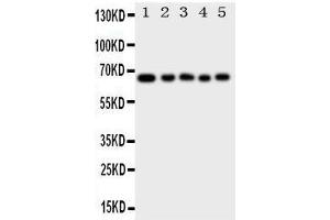 Image no. 1 for anti-Methyl-CpG Binding Domain Protein 4 (MBD4) (AA 566-580), (C-Term) antibody (ABIN3044062)
