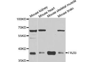 Image no. 1 for anti-Frizzled-Related Protein (FRZB) antibody (ABIN6570552)