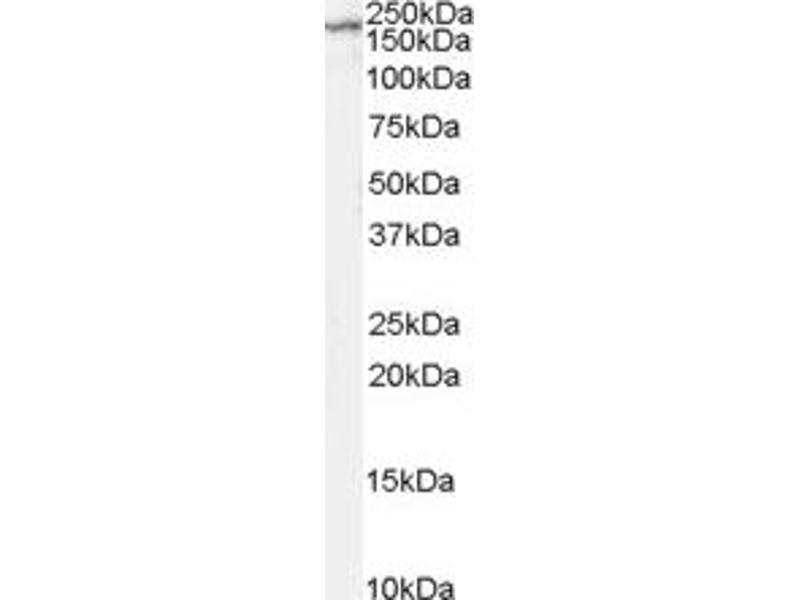 Western Blotting (WB) image for anti-Glutamate Receptor, Ionotropic, N-Methyl D-Aspartate 2B (GRIN2B) antibody (ABIN251562)