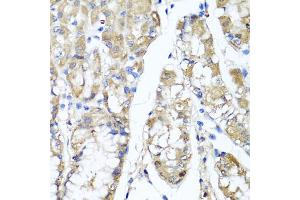 Image no. 2 for anti-Tumor Necrosis Factor-Inducible Protein 6 (TNFAIP6) antibody (ABIN6570428)