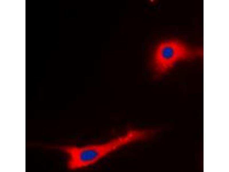 Image no. 1 for anti-Eukaryotic Translation Elongation Factor 2 (EEF2) (N-Term), (pSer56) antibody (ABIN2707489)