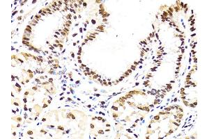 Image no. 3 for anti-Proliferating Cell Nuclear Antigen (PCNA) antibody (ABIN6566543)