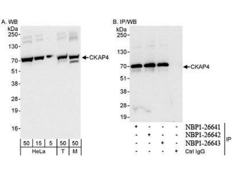 Western Blotting (WB) image for anti-Cytoskeleton-Associated Protein 4 (CKAP4) (AA 500-550) antibody (ABIN439792)