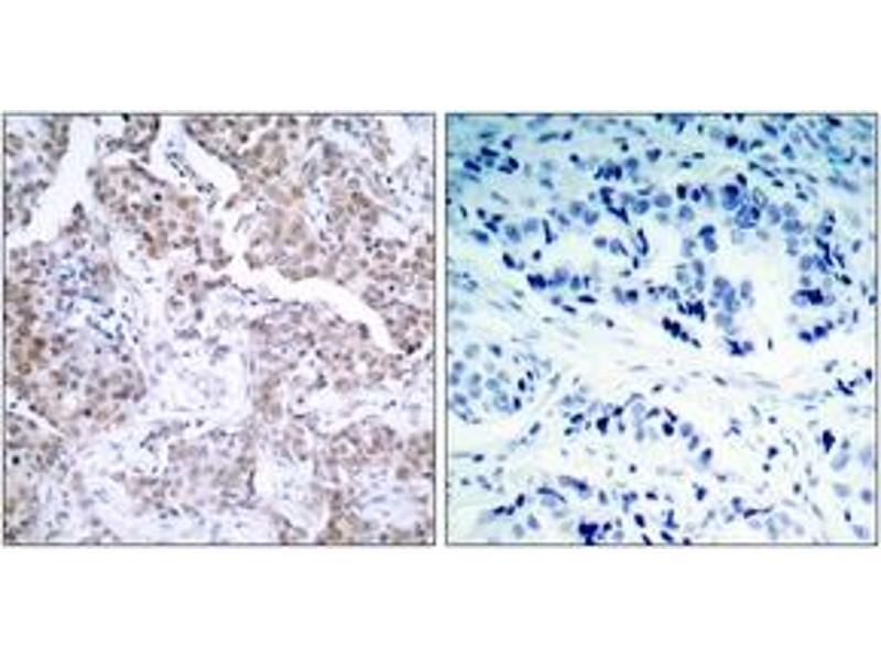 Immunohistochemistry (IHC) image for anti-p53 antibody (Tumor Protein P53) (pSer15) (ABIN1531934)