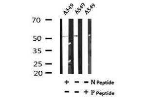 Image no. 1 for anti-Kruppel-Like Factor 5 (Intestinal) (KLF5) (pSer303) antibody (ABIN6269501)