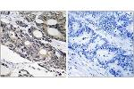 Immunohistochemistry (IHC) image for anti-BCL10 antibody (B-Cell CLL/lymphoma 10) (ABIN1534429)
