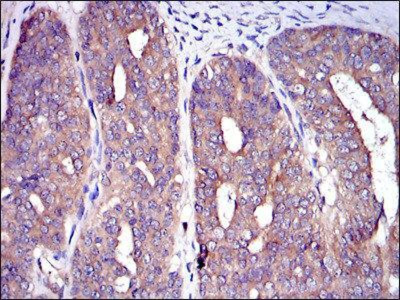 Immunohistochemistry (IHC) image for anti-Cas-Br-M (Murine) Ecotropic Retroviral Transforming Sequence (CBL) antibody (ABIN1845278)