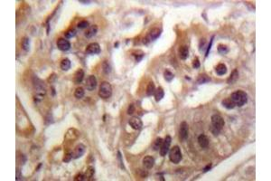 Immunohistochemistry (Paraffin-embedded Sections) (IHC (p)) image for anti-IKBKG antibody (Inhibitor of kappa Light Polypeptide Gene Enhancer in B-Cells, Kinase gamma) (ABIN498245)