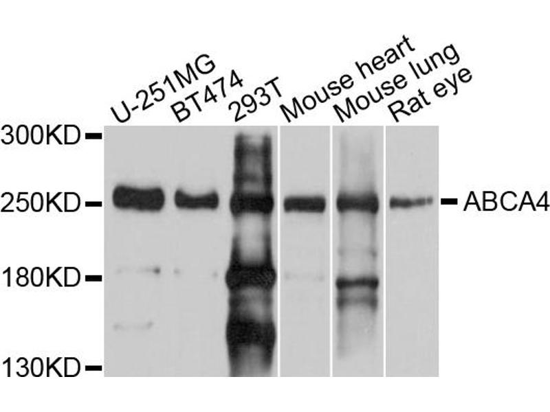 Western Blotting (WB) image for anti-ATP-Binding Cassette, Sub-Family A (ABC1), Member 4 (ABCA4) antibody (ABIN4902806)